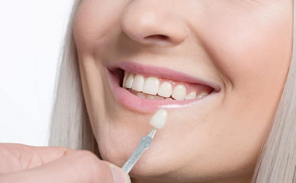 Dental Crowns, Know The Proper One For You